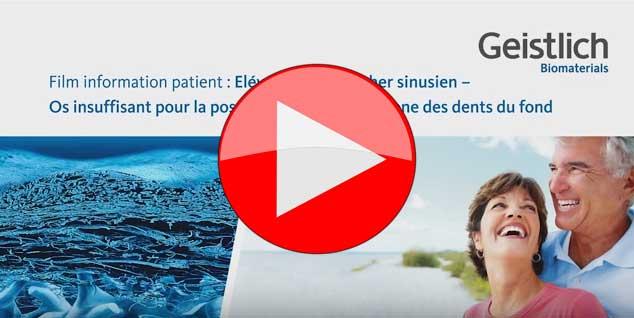 Vidéo comblement de sinus (sinus-lift) - Greffe osseuse sinus