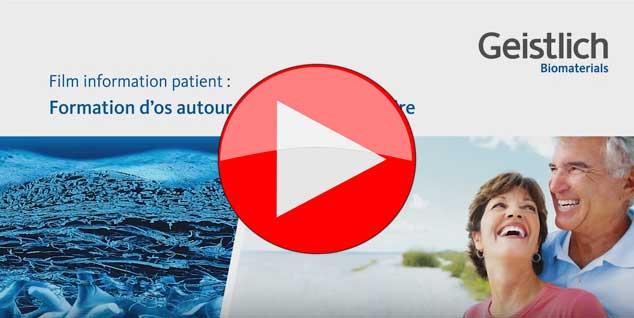 video-formation-d-os-autour-d-un-implant-dentaire