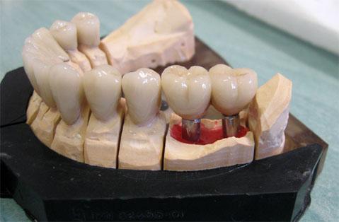 Les 2 implants avec les couronnes