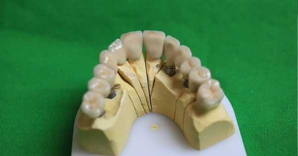 bridge ceramo metal sur implants