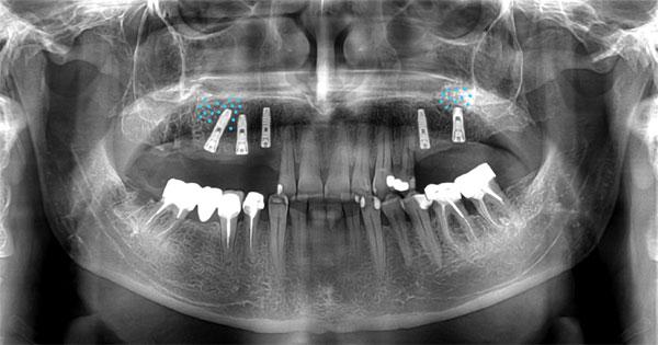 greffe au sinus et pose de 5 implants