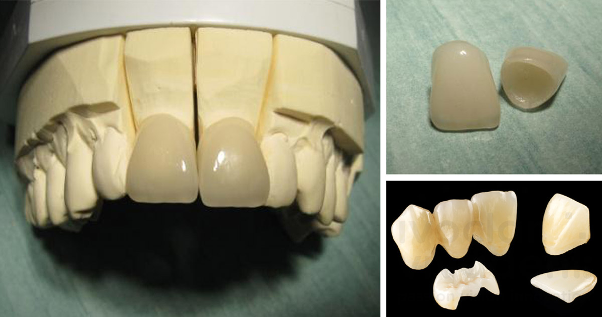 couronnes_EMAX_dents_incisi